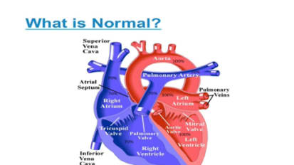 Basics of Congenital Heart Disease