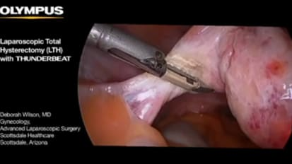Total Laparoscopic Hysterectomy with THUNDERBEAT