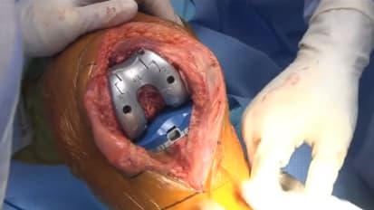 JOURNEY™ II Cruciate Retaining (CR) Knee System Surgery