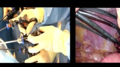 LESS Cholecystectomy Suggestions & Tips: Step 5 -  Controlling the Flexible Tip Scope