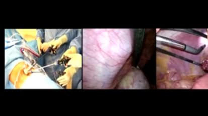 LESS Cholecystectomy Suggestions & Tips: Step 11 -  Articulating the Scope Correctly