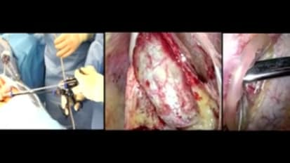 LESS Cholecystectomy Suggestions & Tips: Step 9 -  Inserting the Infundibular Grasper and the Maryland Dissector