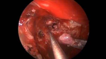 Endoscopic Surgery for Residual Pituitary Microadenoma