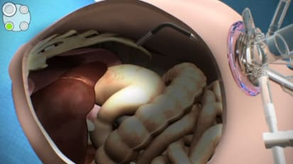 LESS Cholecystectomy Animation