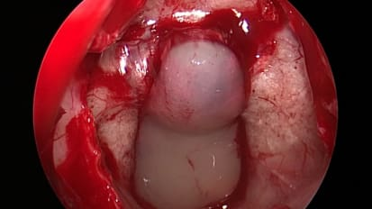 Endoscopic Approach to Rathke's Cleft Cyst Removal