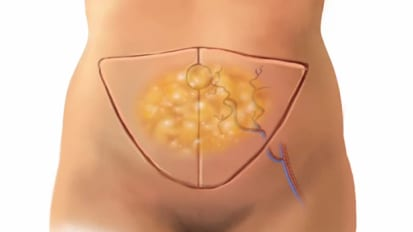 Breast Reconstruction Surgery - DIEP Flap