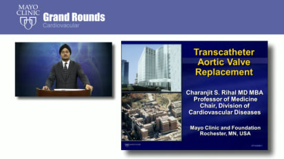Grand Rounds: Transcatheter Aortic Valve Replacement
