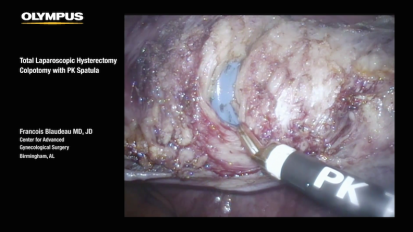 LESS TLH Colpotomy with PK Spatula