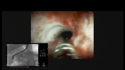 Assessing a Bile Duct Stricture Using the SpyGlass DS System, by Sri Komanduri, MD