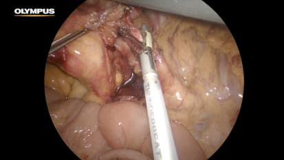 Ileocolectomy