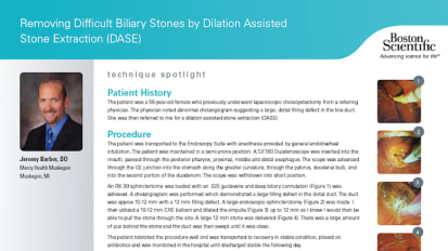 Removing Difficult Biliary Stones by Dilation Assisted Stone Extraction (DASE) by Jeremy Barber, D.O.