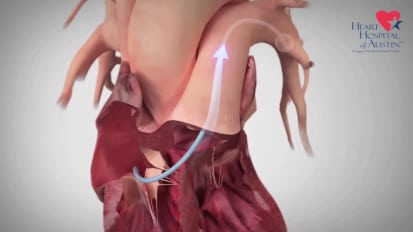 CardioMEMS: Treating Heart Failure Before the Onset of Symptoms
