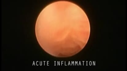 Acute Inflammation of the Salivary Ducts