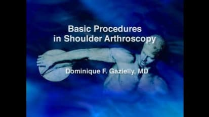 Basic Procedures in Shoulder Arthroscopy