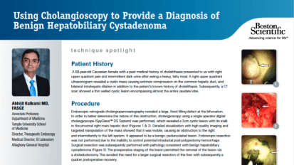 Using Cholangioscopy to Provide a Diagnosis of Benign Hepatobiliary Cystadenoma Presented by Abhijit Kulkarni M.D. FASGE