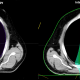 Figure 1: The green colorwash demonstrates the 20 Gy isodose line for a five non-opposed co-planar field IMRT plan (left) compared to a two field IMPT plan (right) that were both prescribed to 50.4 Gy. It is obvious that the mean heart dose is substantially less, but in this case the maximum dose to the aortic valve prior to a planned replacement is less than four Gy.