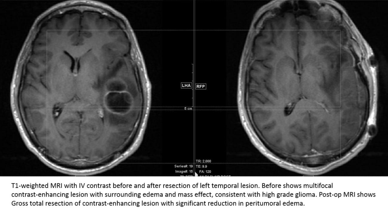 T1-weighted MRI with IV contrast before and after resection of left temporal lesion
