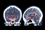 Cryptogenic Stroke and PFO: Data Even Neurologists Will Believe