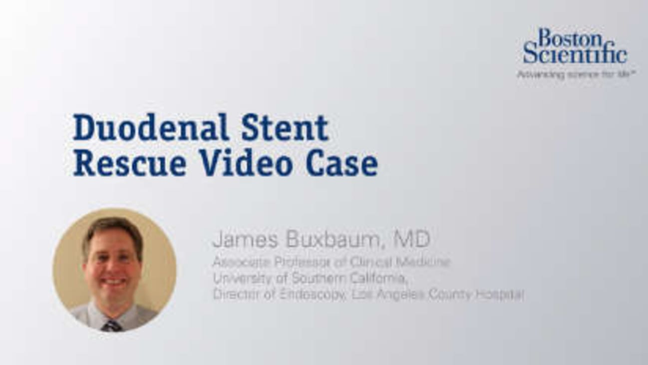 Duodenal Stent Rescue Case