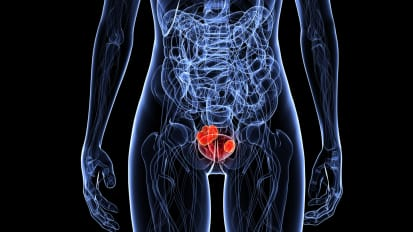 Management of Non-Muscle Invasive Bladder Cancer