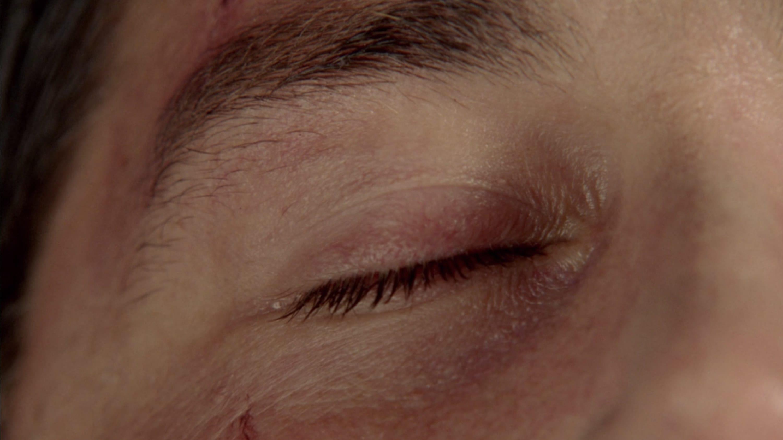 Jack's eye closed