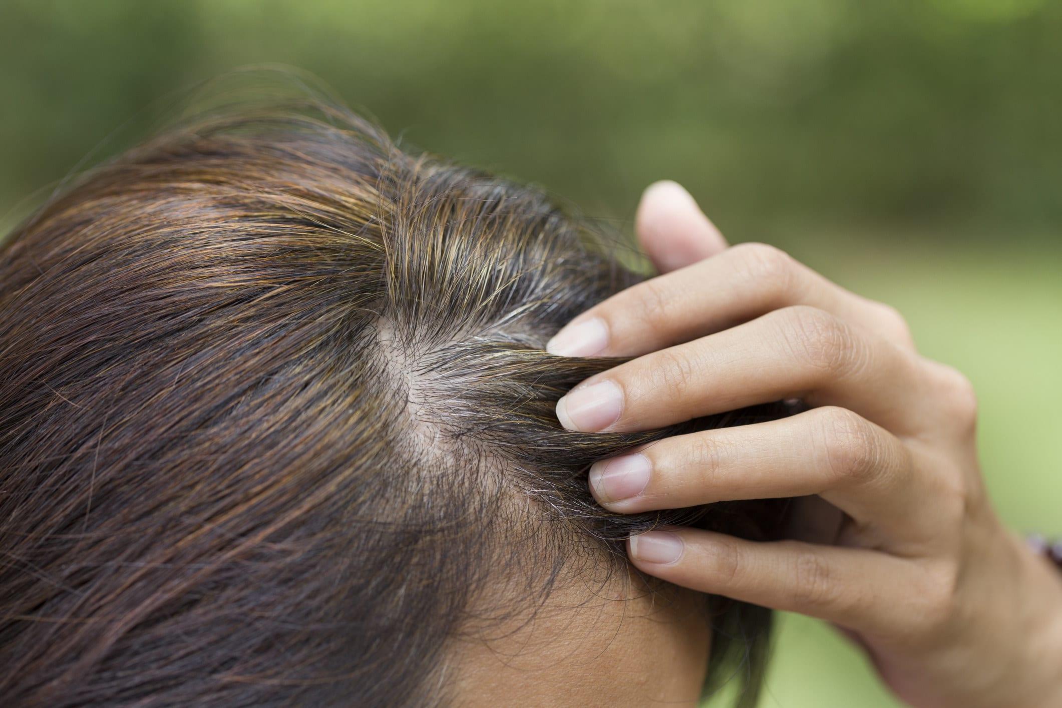 Mão passando o cabelo no couro cabeludo