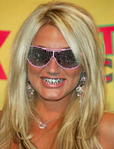 in blinged out teeth and glasses