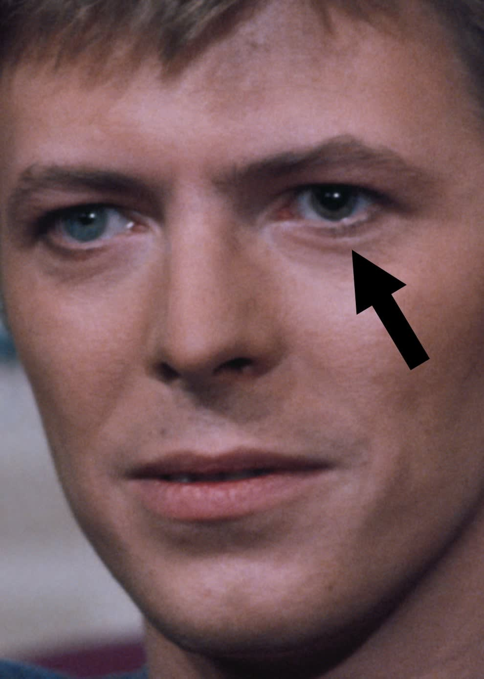 Close-up of David's face with an arrow pointing at his left eye