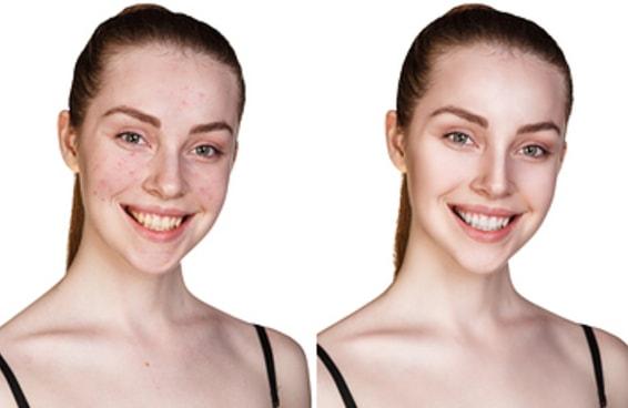 32 dicas que você nunca ouviu antes para ter uma pele perfeita