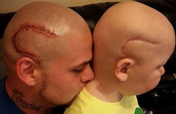 Este pai fez uma tatuagem da cicatriz da cirurgia do seu filho para ajudá-lo a se sentir menos envergonhado