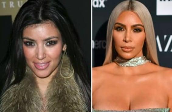 Isto é o quanto as Kardashians mudaram em 10 anos