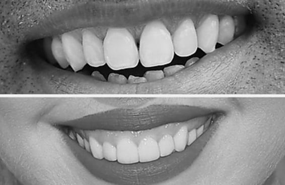 Adivinhe qual é a celebridade com base em um close de seus dentes