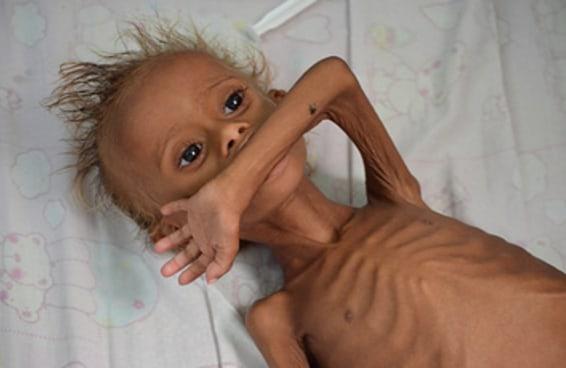 As crianças do Iêmen estão morrendo de fome