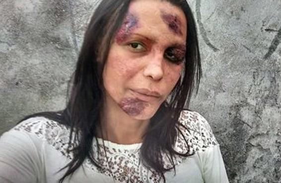 """""""Estamos sendo exterminadas como animais"""", diz Marilac sobre crimes contra trans"""