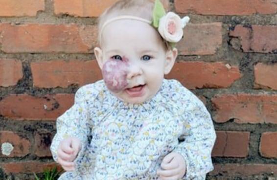 Esta mãe se manifestou porque as pessoas não paravam de perguntar sobre o rosto de sua filha