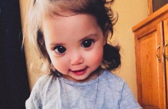 Os lindos e grandes olhos desta menininha são causados por uma rara síndrome genética