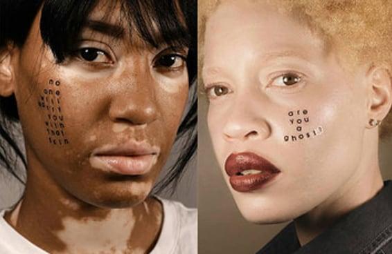 """Esta incrível série de fotos prova que somos todos bonitos e que a ideia de uma """"pele perfeita"""" não faz sentido"""