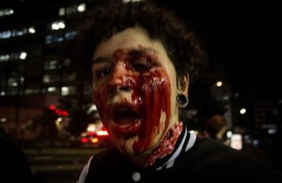 Manifestante teve olho perfurado em ato anti-Temer e passou por cirurgia