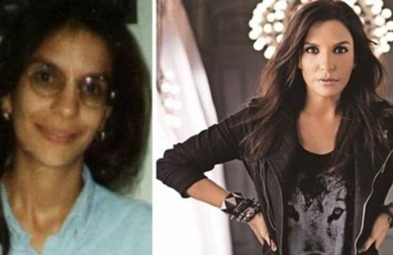 14 antes e depois de celebridades que provam que sempre há esperança
