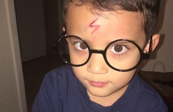 Esta mãe transformou o filho em Harry Potter quando ele ficou com vergonha por causa de uma cicatriz