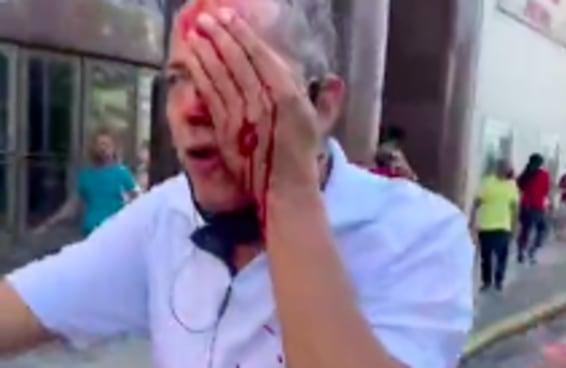 Por que a polícia do Recife só atira bombas em quem protesta contra Bolsonaro?