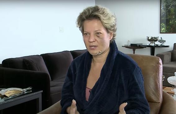 Joice Hasselmann surgiu cheia de fraturas, sem lembrar de nada, e deixou o país em choque