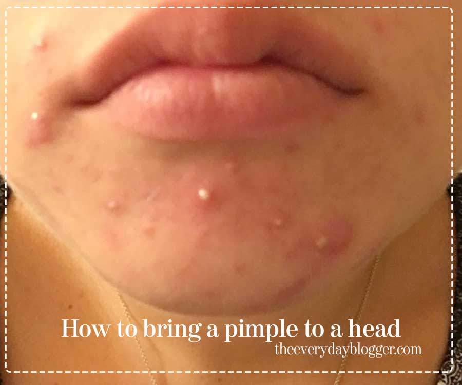 how to bring a pimple to a head