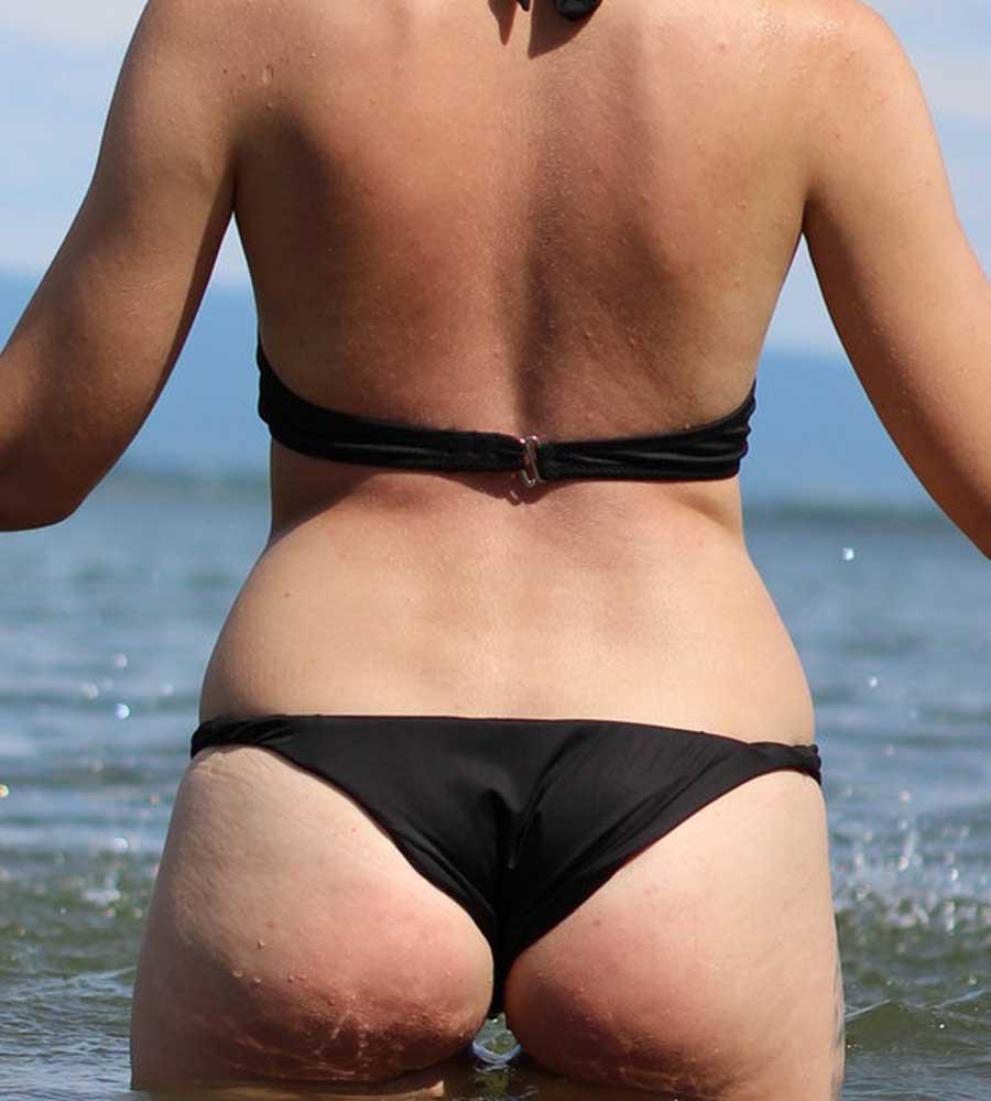 Hyperpigmentation on Buttocks