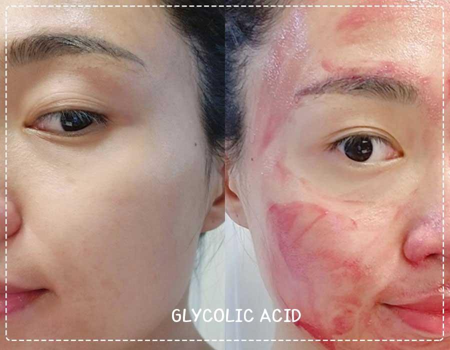 Lactic Acid vs glycolic acid