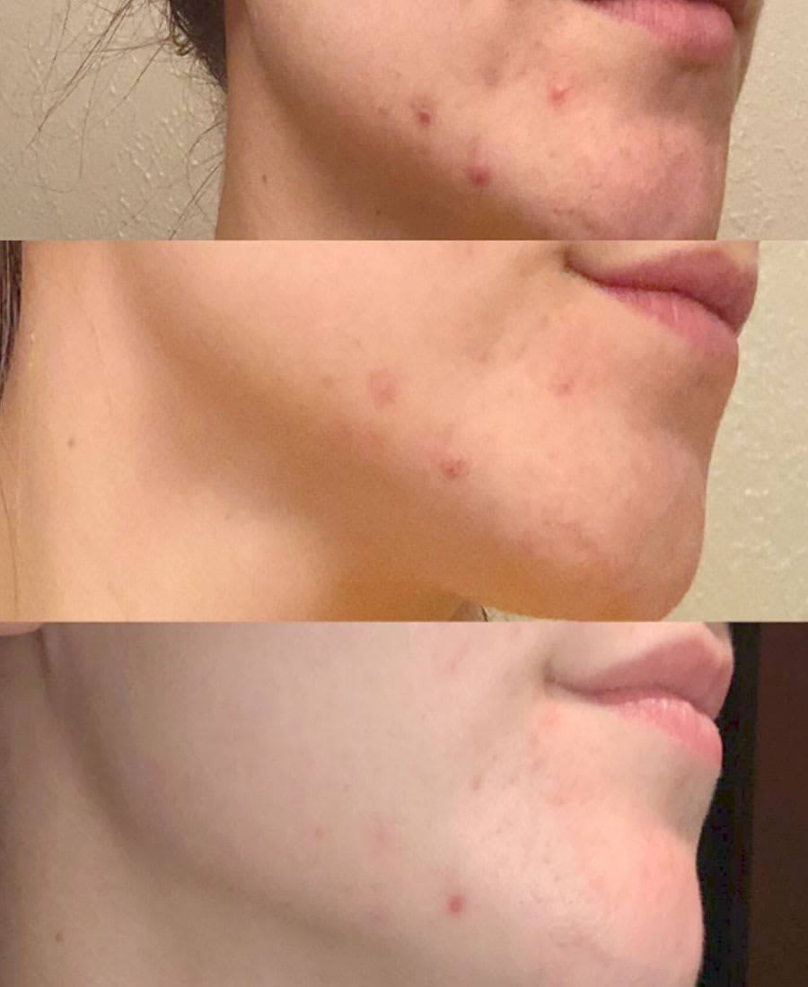 vapor rub for acne