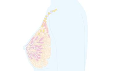 Illustration av bröst där man kan få bröstcancer