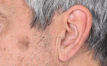Ofarlig hudtumör – seborroisk keratos