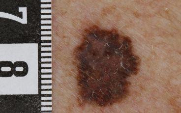 Ensam brun fläck - malignt melanom