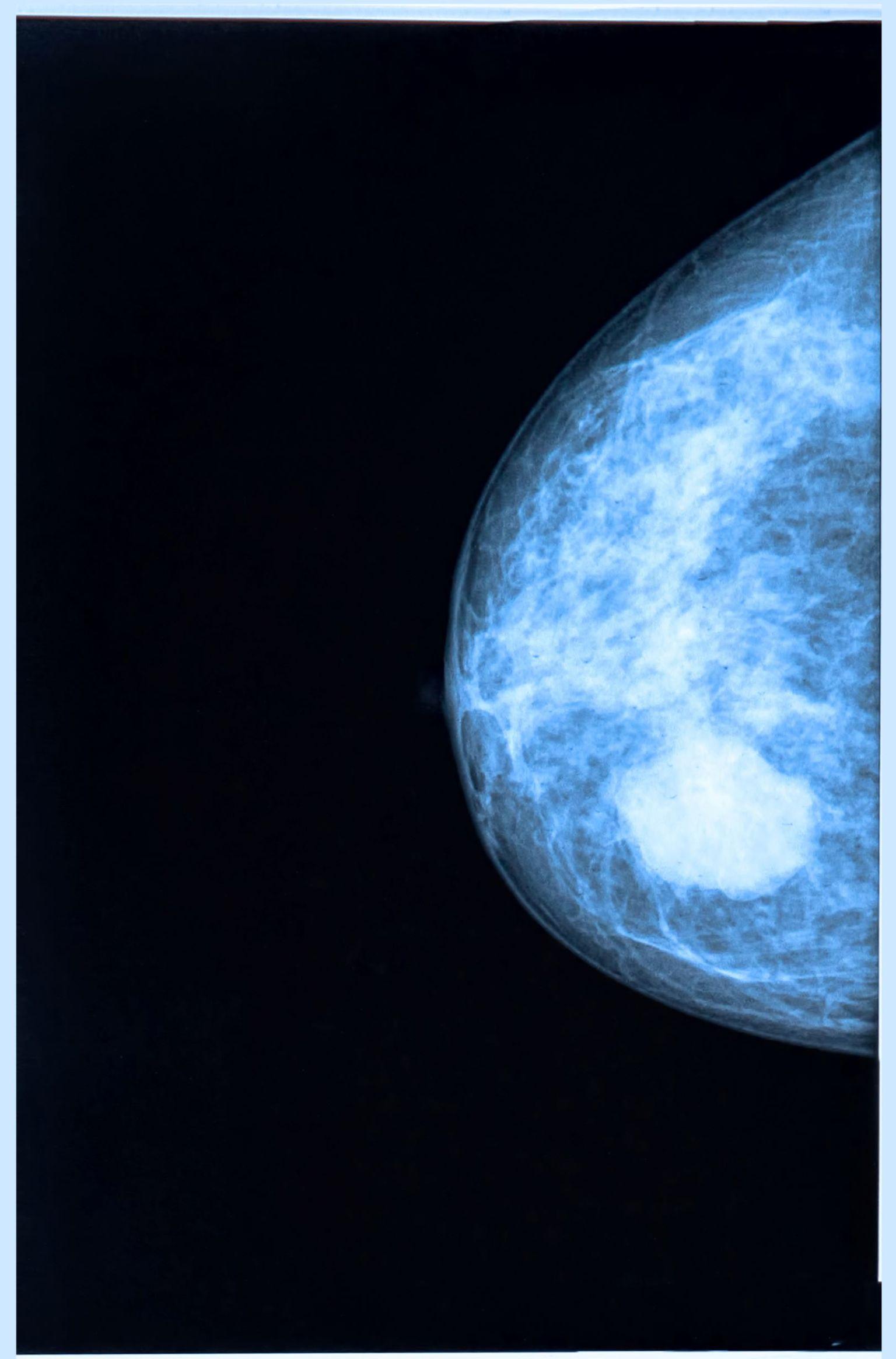 En person i vit rock ser på en röntgenbild av ett bröst.